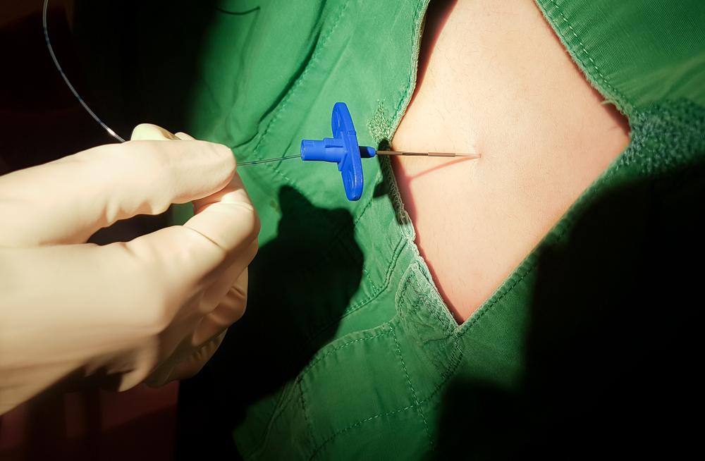 Aplicação de anestesia peridural